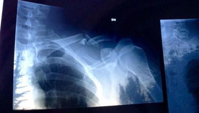 Alex Zanardi se golpea contra un guardarraíl... Y lo rompe