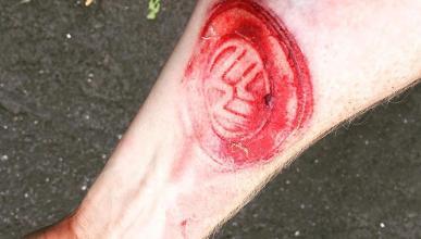 Un Volkswagen Golf 'tatúa' el brazo a su conductor