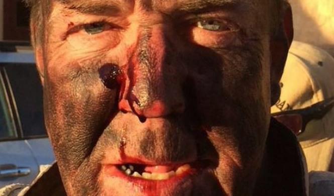 ¿Qué le ha pasado a Jeremy Clarkson en la cara?